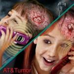 tumor_dees