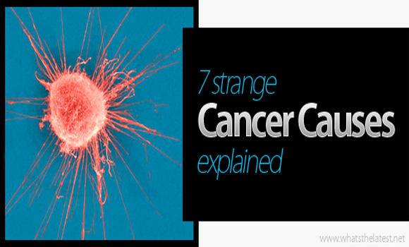 What Causes Cancer 7 Strange Cancer Claims Explained