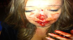 Cops Storm onto Private Property and Knock out 15 Year Old Girls Teeth