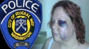 Handicapped Woman Calls 911 During Brutal Beating by Cops
