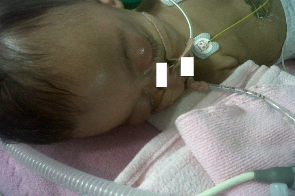 Five Month-Old Baby Dies Just Days After 8 Vaccinations – Parents Are Charged With Her Murder