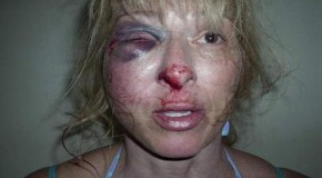 Florida Police Brutality: Woman's Face Smashed Into Pavement During Arrest
