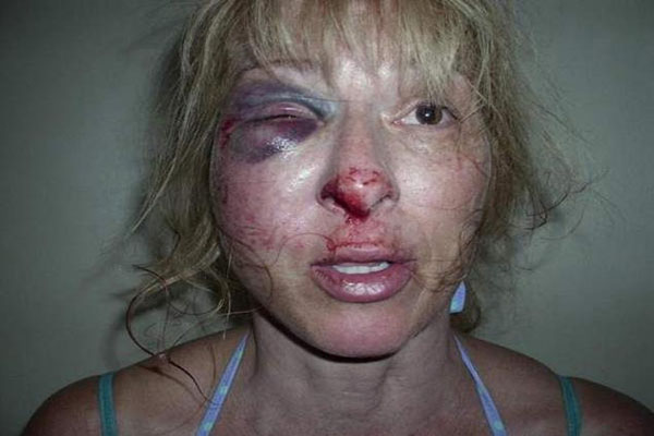 Florida Police Brutality Woman's Face Smashed Into Pavement During Arrest