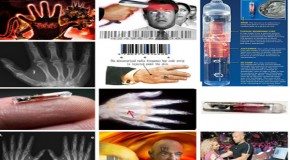 Coming Soon: Microchips In All Americans For Obamacare?