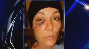 Illinois woman has reconstructive surgery after cop slams her face into concrete bench