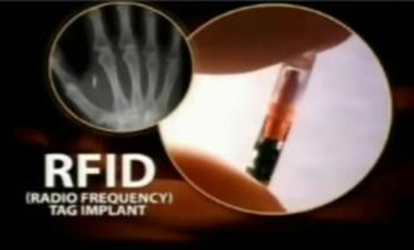 Pastor Receives Obamacare RFID Chip