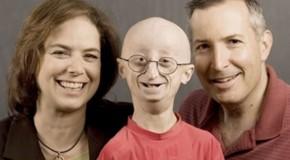 17-year-old boy dies of rare old age disease