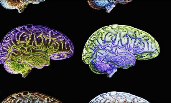 The Future of Brain Implants