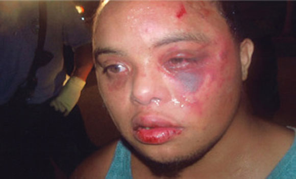 22 Year Old With Down Syndrome Beaten By The Police For 'Bulge In Pants' That Was Only A Colostomy Bag