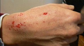 "[Photo] Fukushima decontamination volunteer ""Blood suddenly splashes out of skin quite often. This is the reality."""