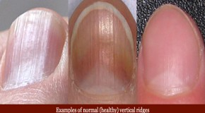 Eight Health WARNINGS Your Fingernails May Be Sending