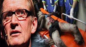 Norwegian surgeon witnesses Israeli war crimes in Gaza