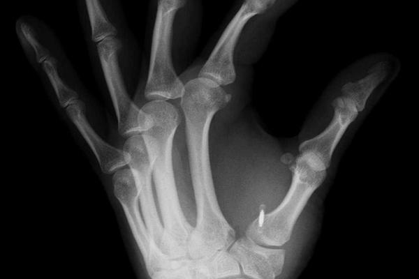 Microchips serão implantados nas pessoas saudáveis Mais cedo do que você pensa