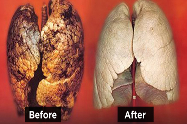 How To Purify Your Lungs In 72 Hours